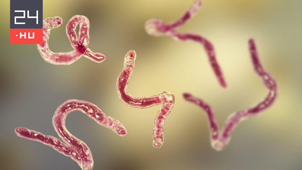 A researcher infected with worms for an experiment